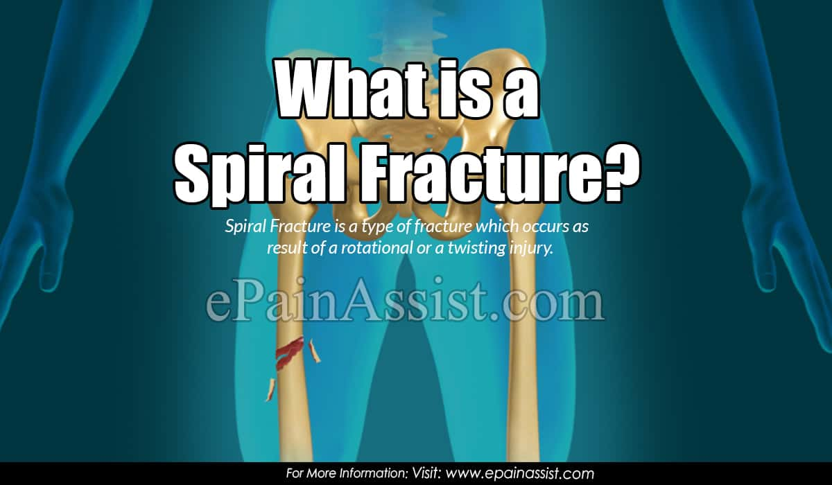 What is a Spiral Fracture?
