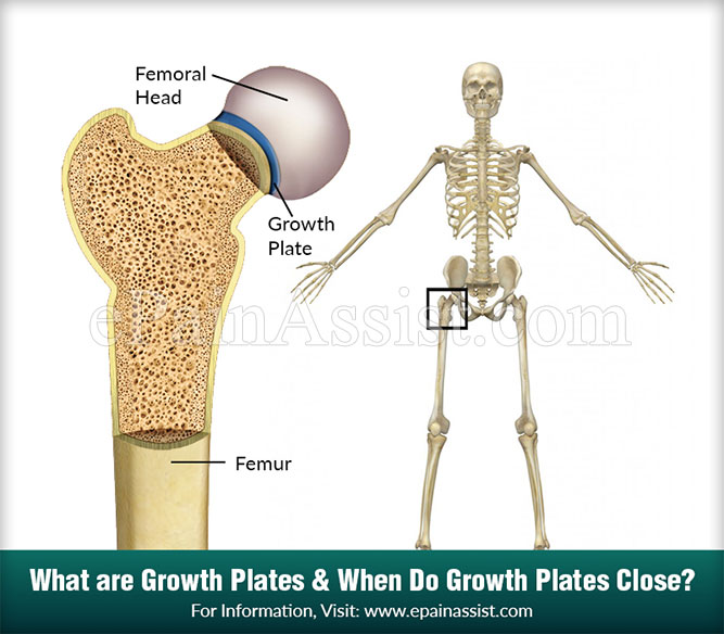 What are Growth Plates & When Do Growth Plates Close?