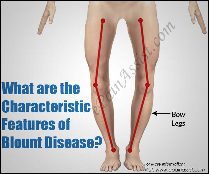What are the Characteristic Features of Blount Disease?
