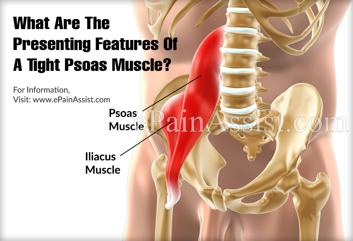 What Are The Presenting Features Of A Tight Psoas Muscle?