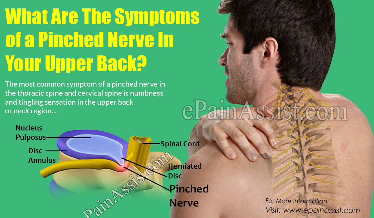 What Are The Symptoms of a Pinched Nerve In Your Upper Back?