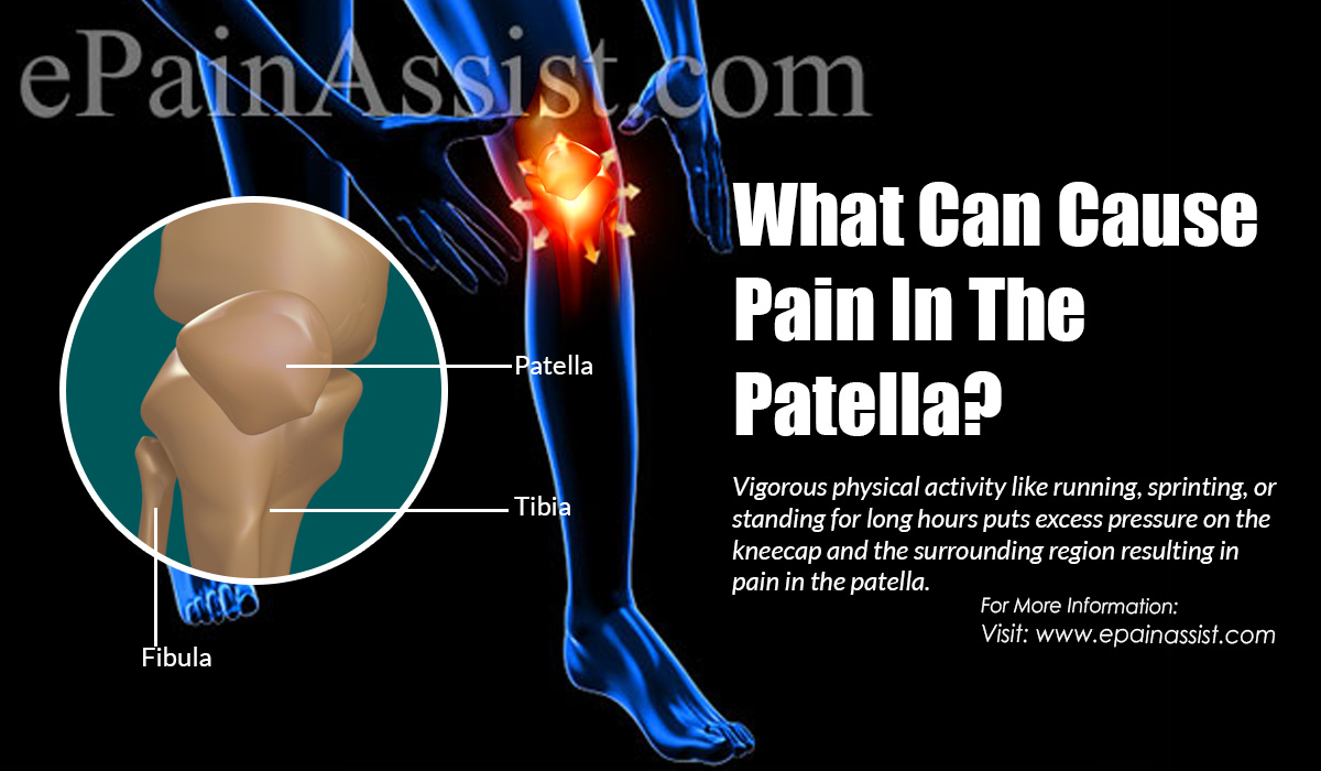 What Can Cause Pain In The Patella?