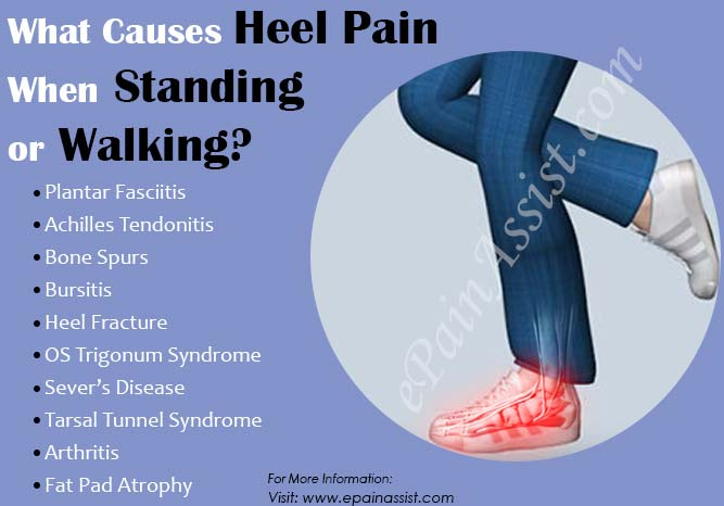 What Causes Heel Pain When Standing Or Walking
