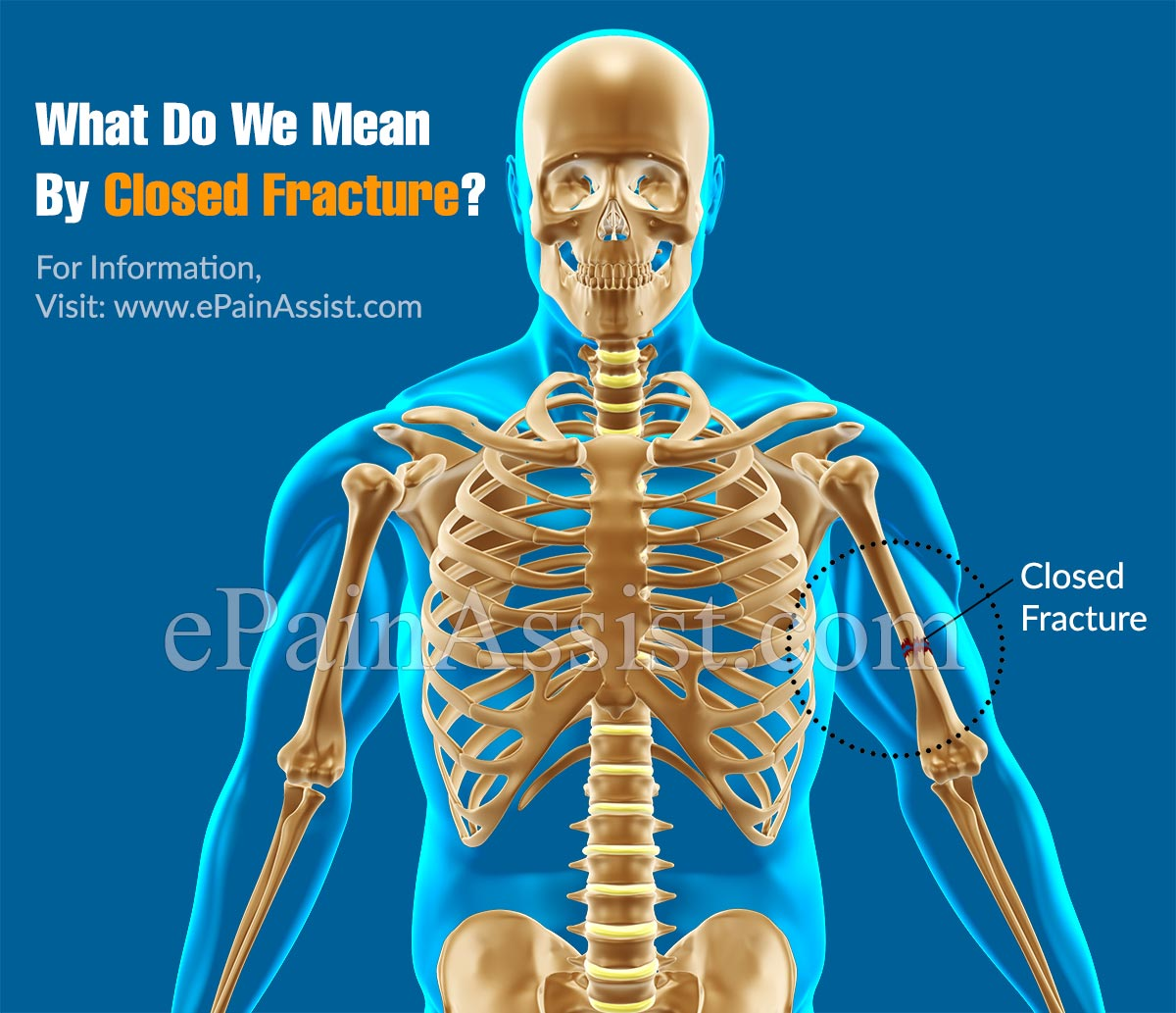 What Do We Mean By Closed Fracture?