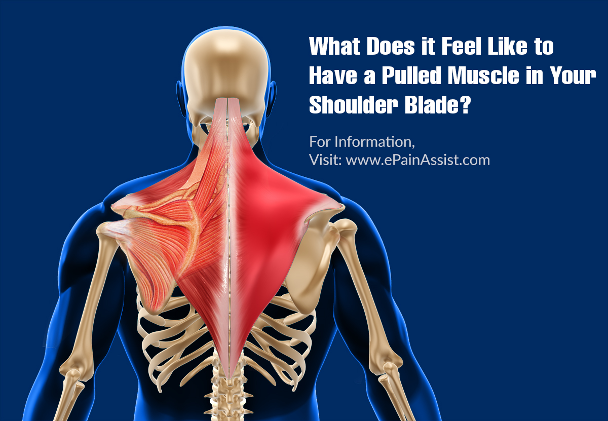 What Does It Feel Like To Have A Pulled Muscle In Your Shoulder Blade?