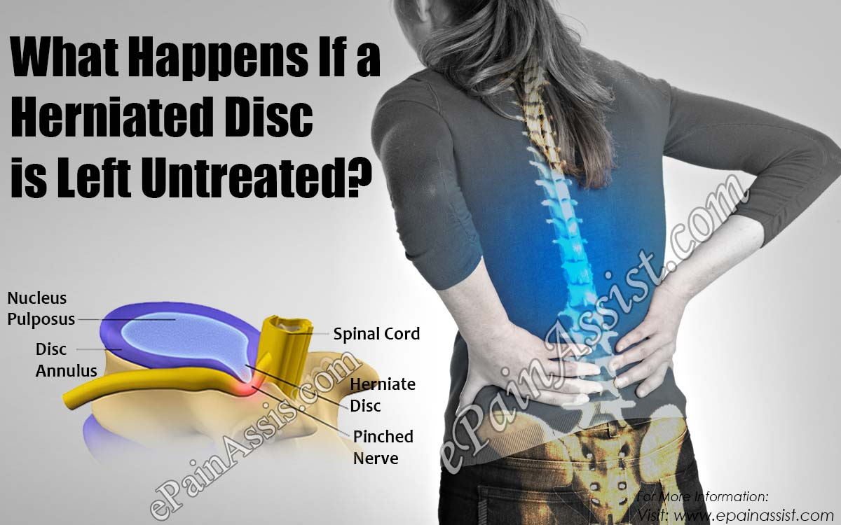 What Happens If a Herniated Disc is Left Untreated?