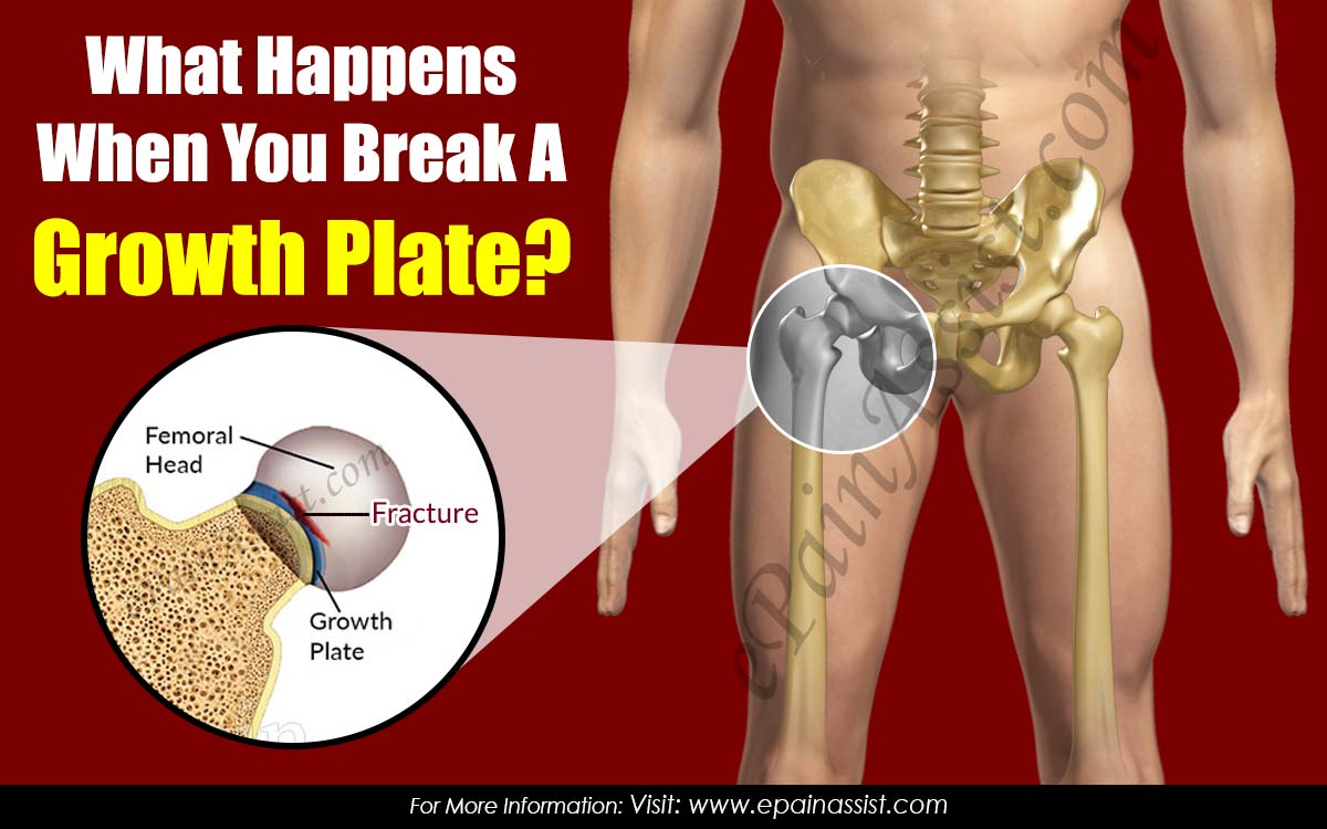 What Happens When You Break A Growth Plate?
