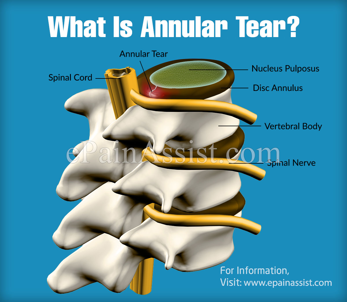 What Is Annular Tear & How Does It Feel Like?