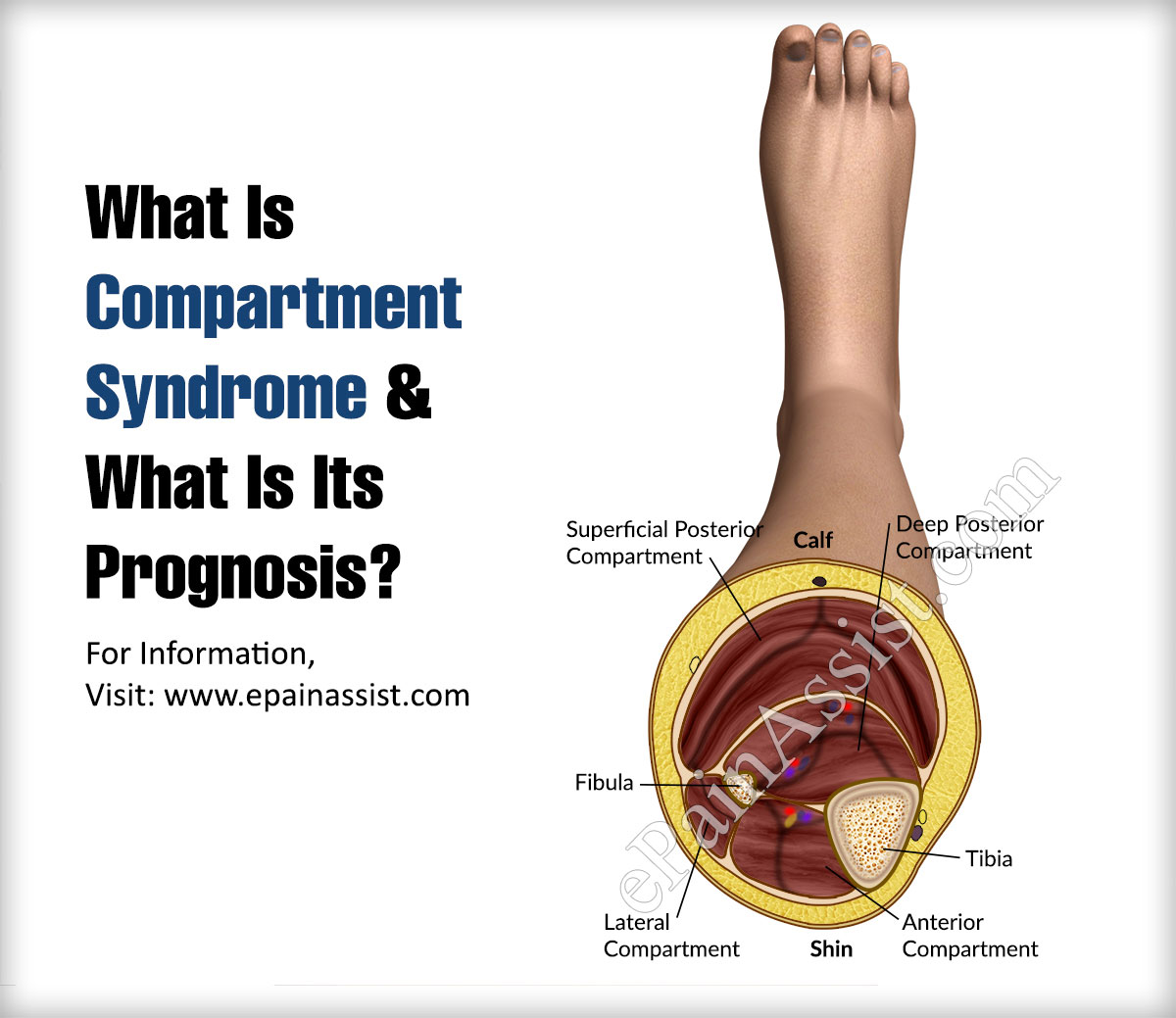 What Is Compartment Syndrome?