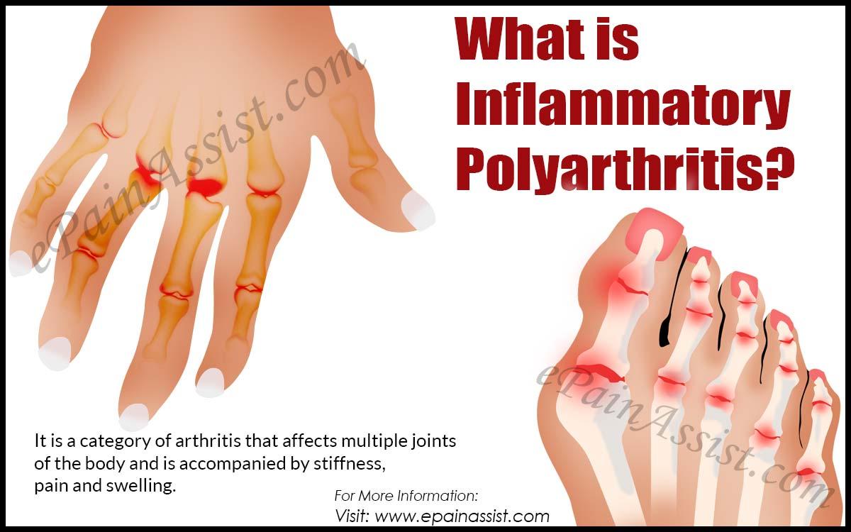 What is Inflammatory Polyarthritis?