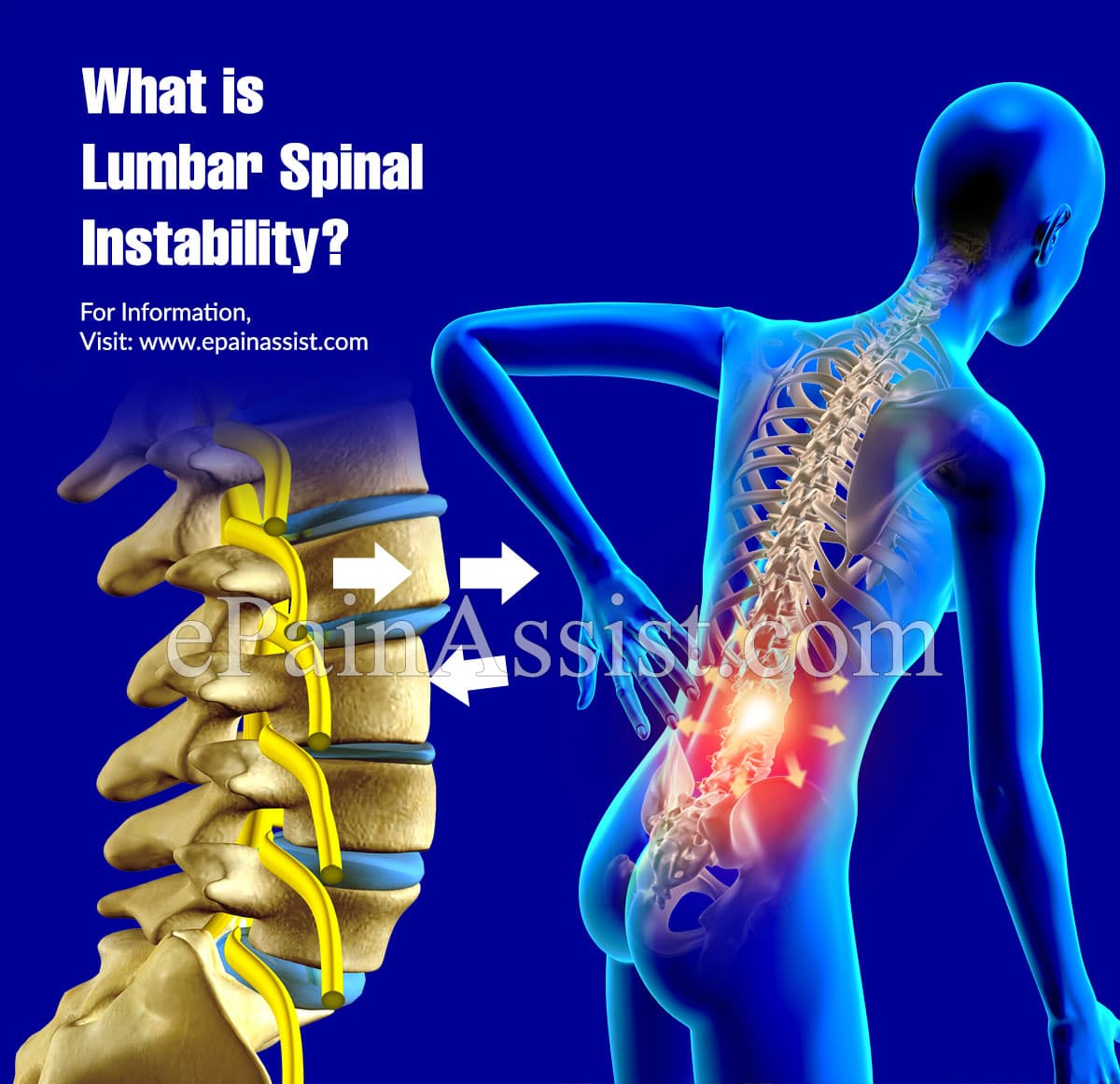 What is Lumbar Spinal Instability?