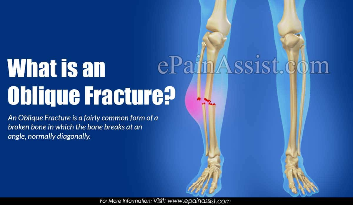 What is an Oblique Fracture?