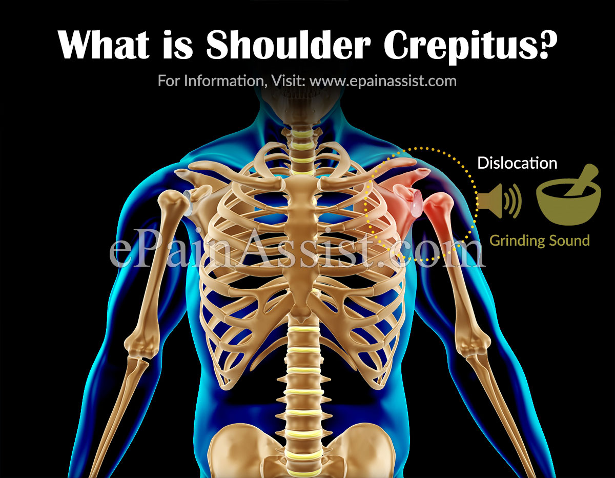 What is Shoulder Crepitus?