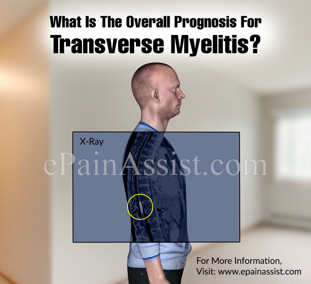 What is the Overall Prognosis for Transverse Myelitis?