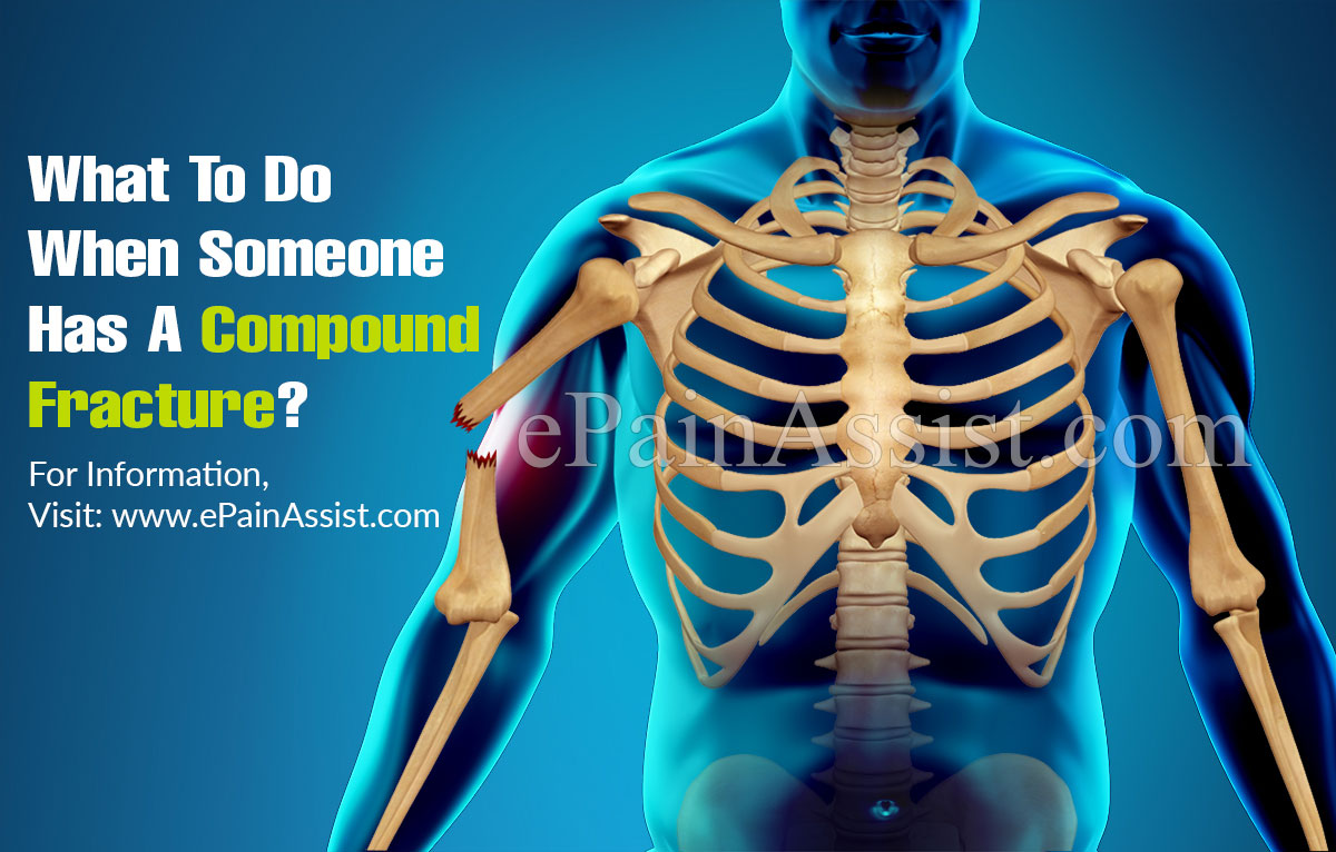 What To Do When Someone Has A Compound Fracture?