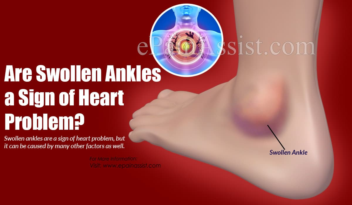 Are Swollen Ankles a Sign of Heart Problem?