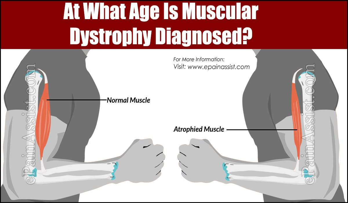At What Age Is Muscular Dystrophy Diagnosed?