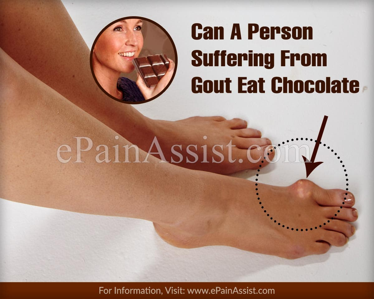 Can A Person Suffering From Gout Eat Chocolate
