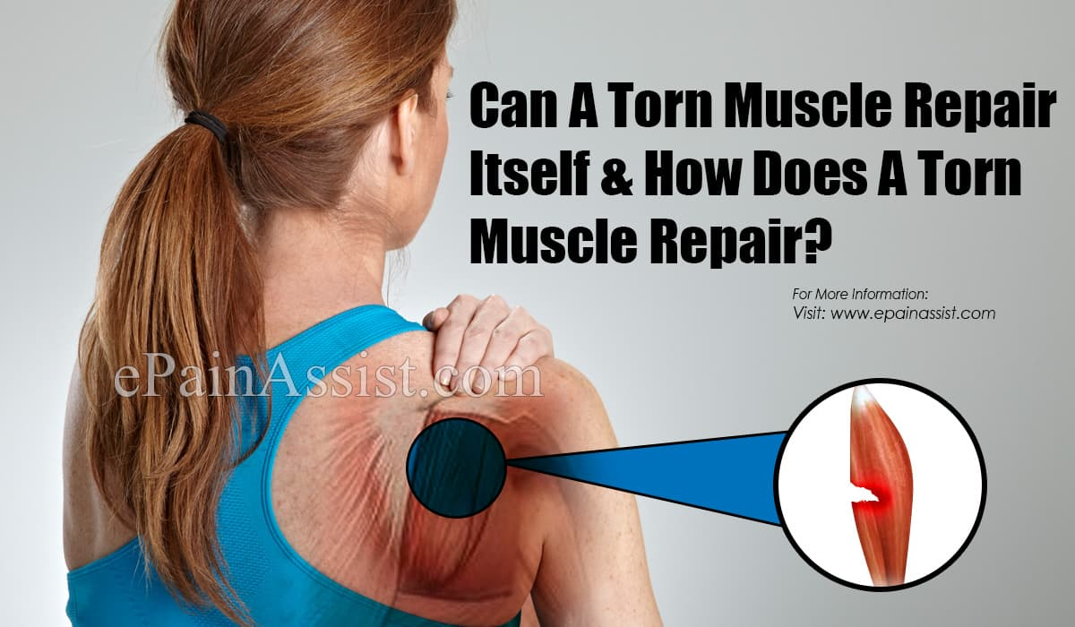 Can A Torn Muscle Repair Itself & How Does A Torn Muscle Repair?