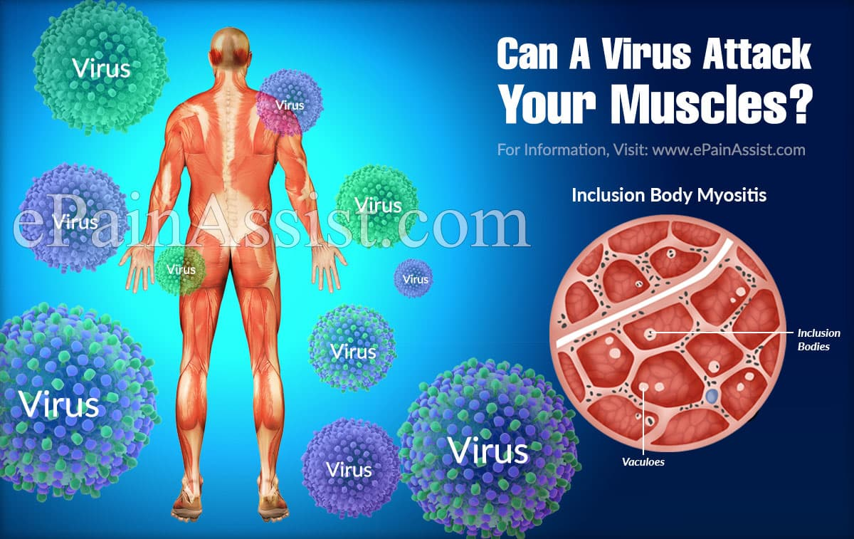 Can A Virus Attack Your Muscles?