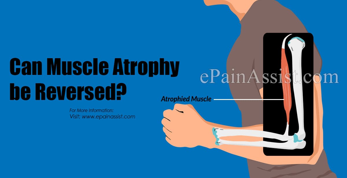 Can Muscle Atrophy be Reversed?