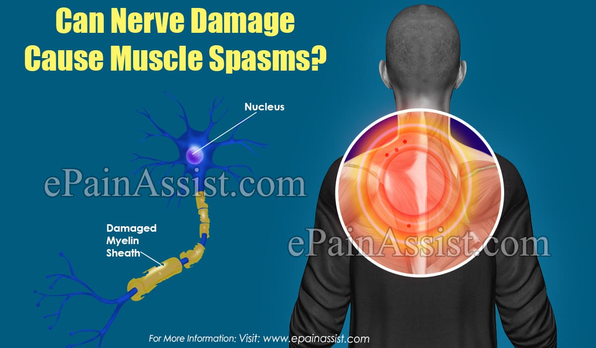 Can Nerve Damage Cause Muscle Spasms?