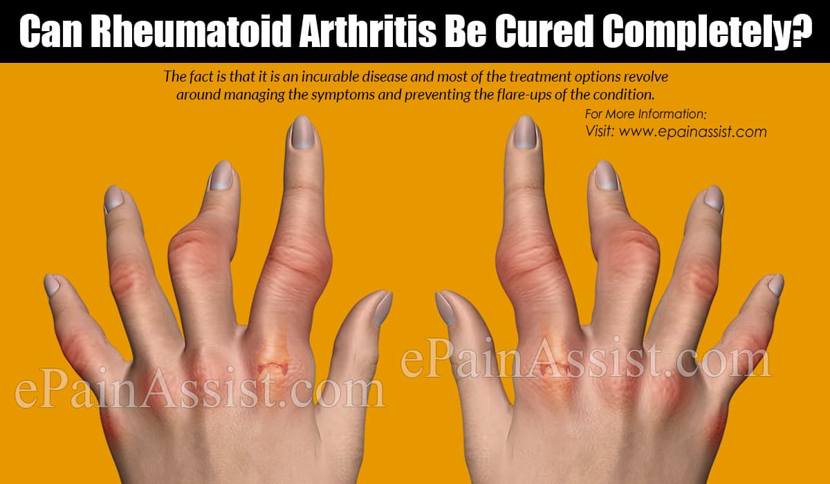 Can Rheumatoid Arthritis Be Cured Completely?