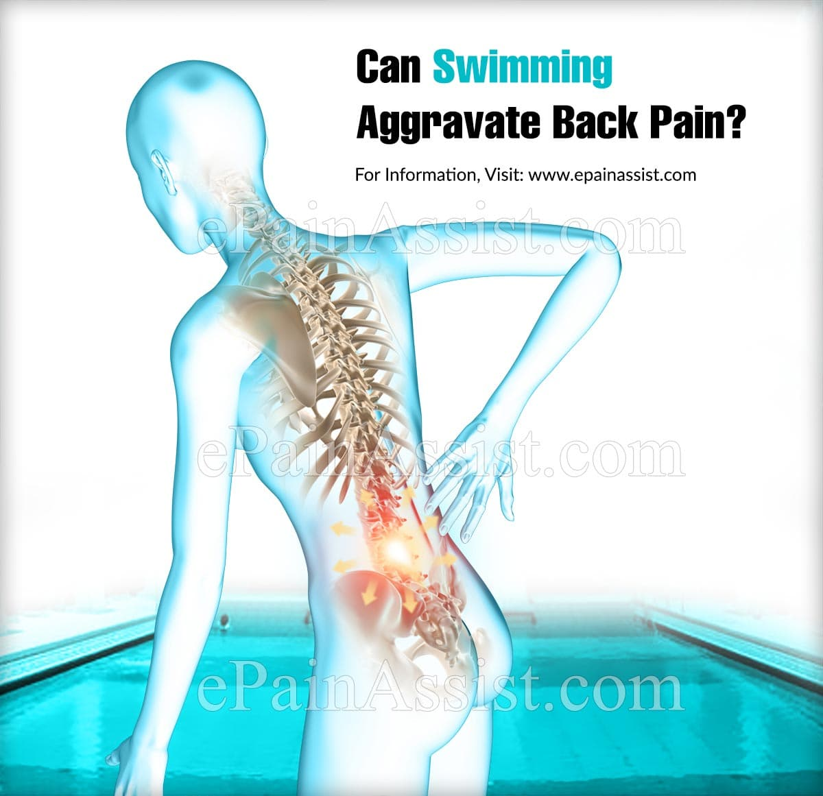 Can Swimming Aggravate Back Pain?