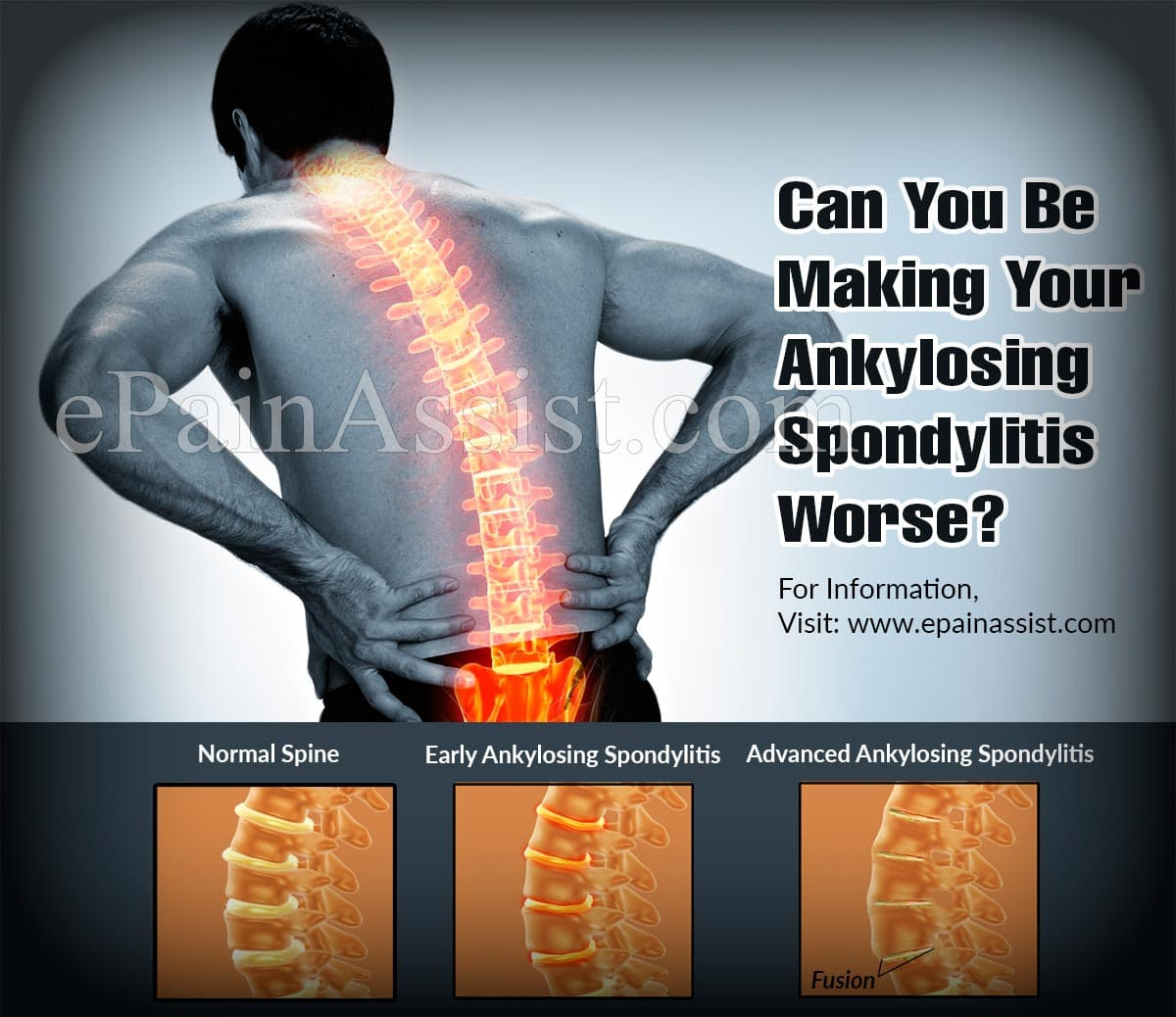 Can You Be Making Your Ankylosing Spondylitis Worse?