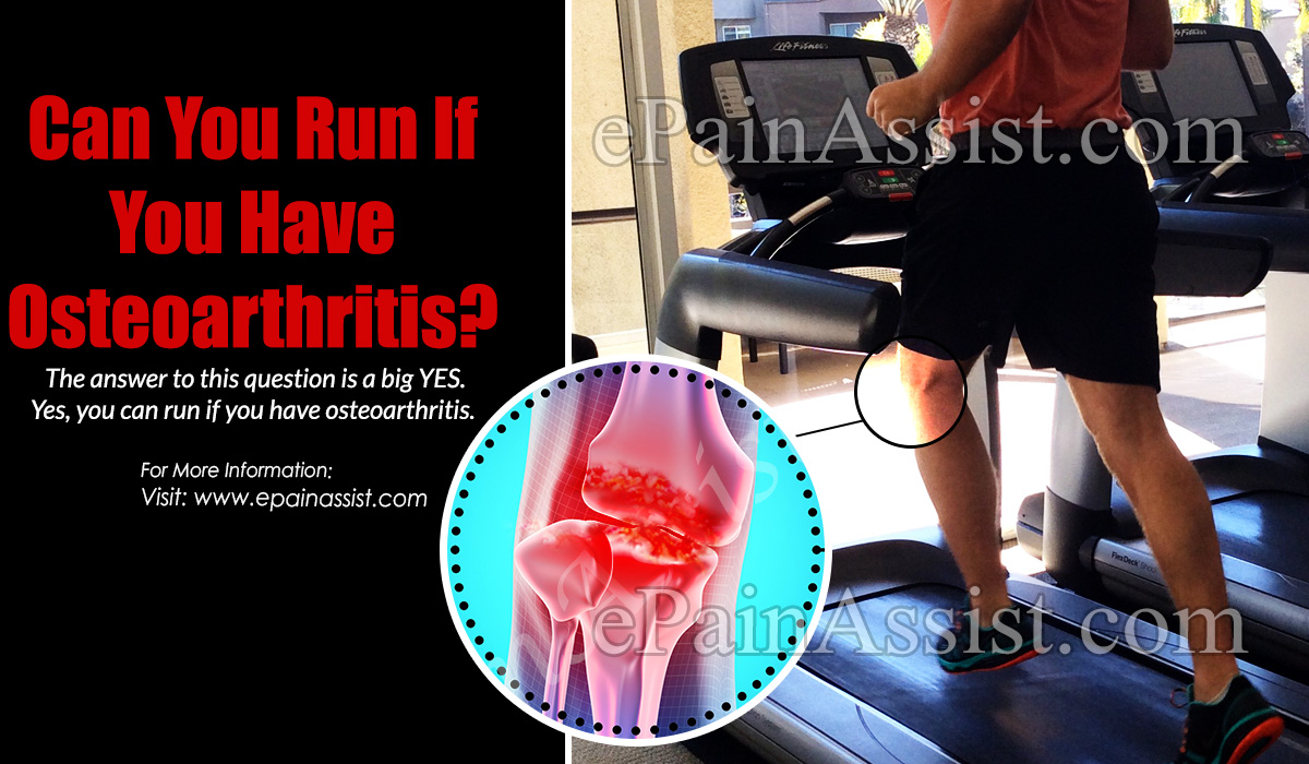 Can You Run If You Have Osteoarthritis?