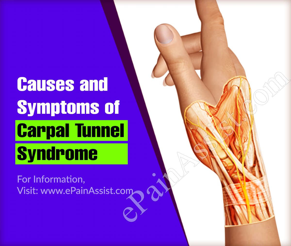 Causes and Symptoms Associated with Carpal Tunnel Syndrome