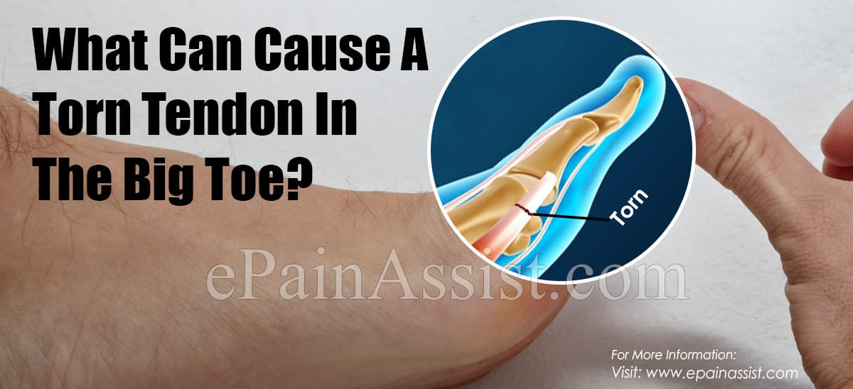Causes & Symptoms Of Torn Tendon In The Big Toe