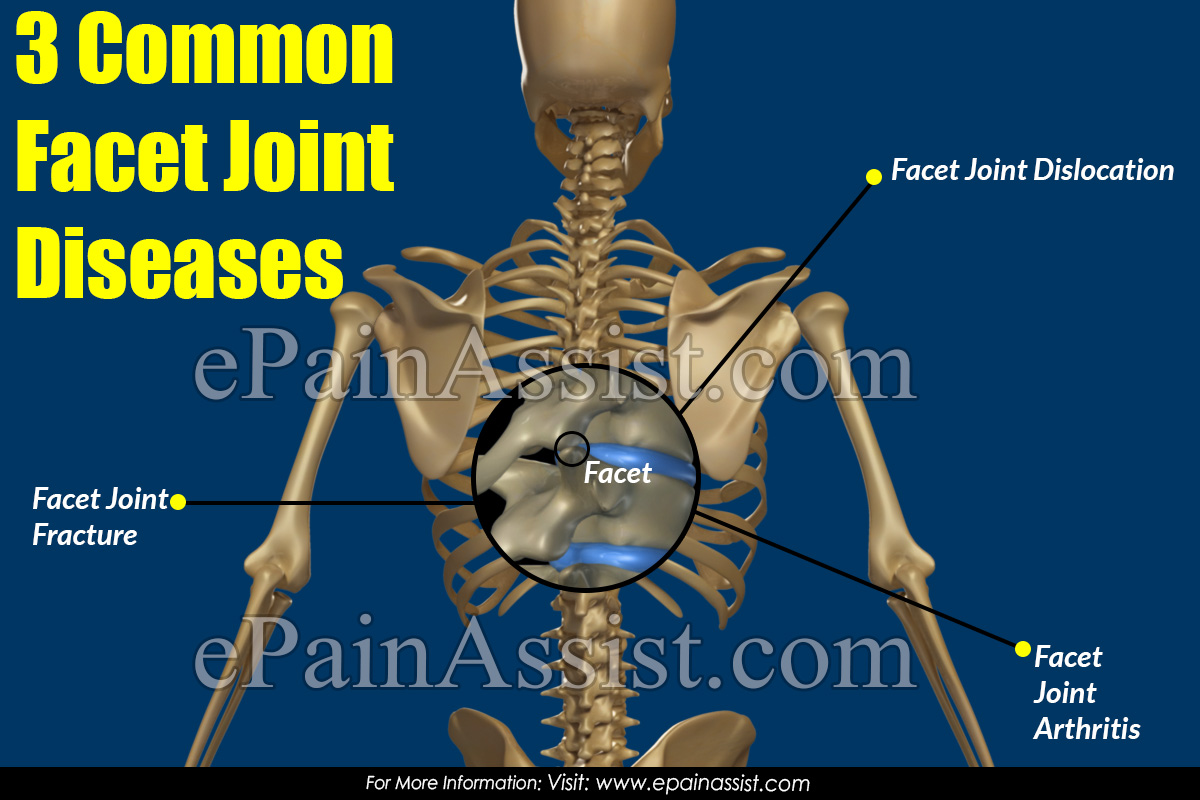 3 Common Facet Joint Diseases