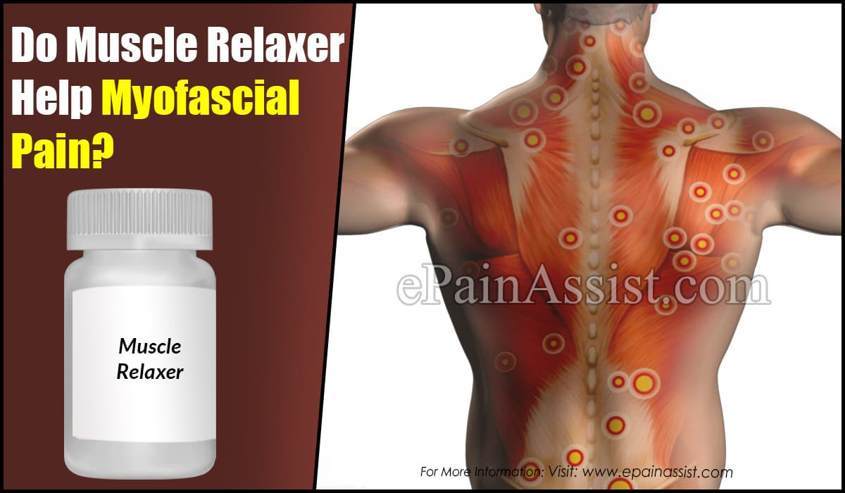 Do Muscle Relaxers Help Myofascial Pain?
