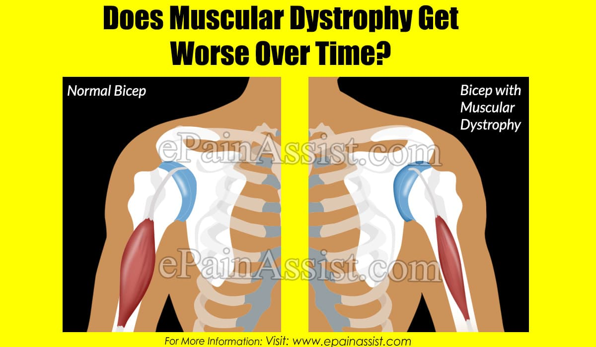 Does Muscular Dystrophy Get Worse Over Time?