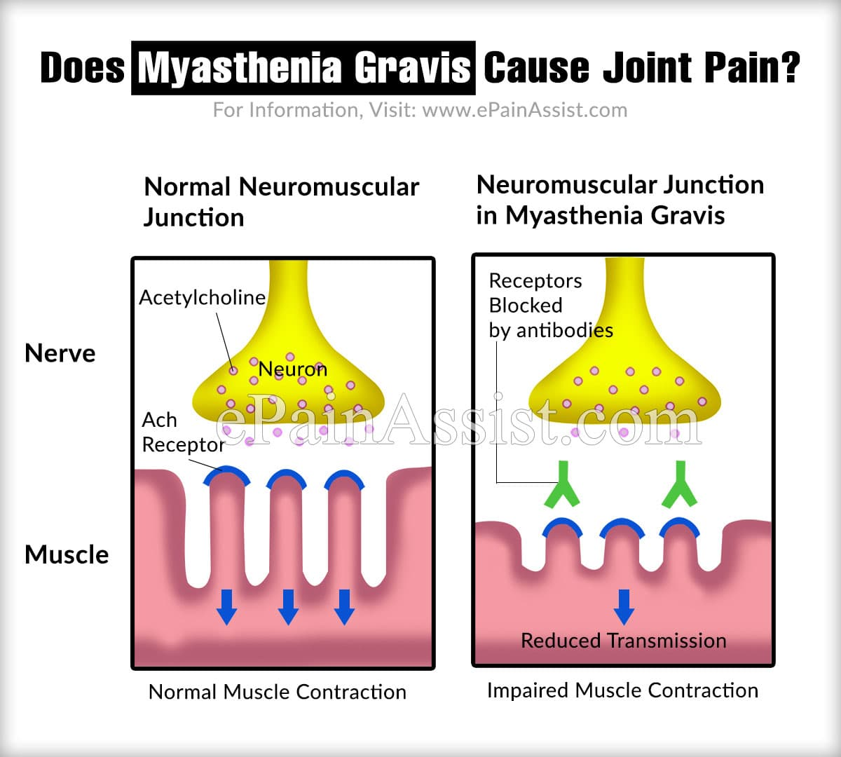 Does Myasthenia Gravis Cause Joint Pain?