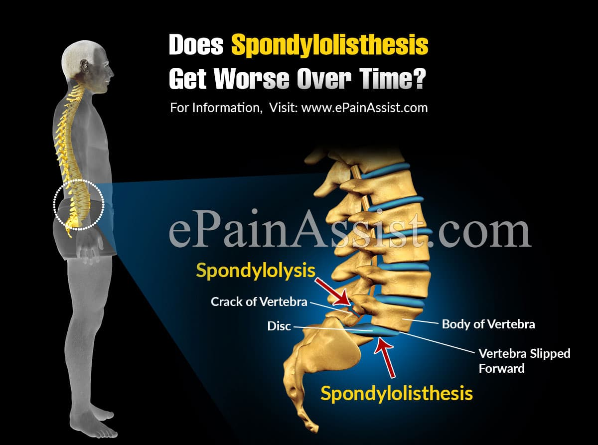Does Spondylolisthesis Get Worse Over Time?