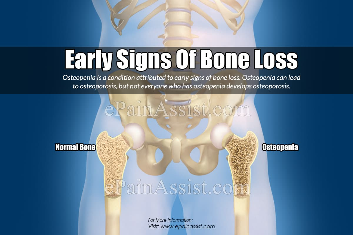Early Signs Of Bone Loss