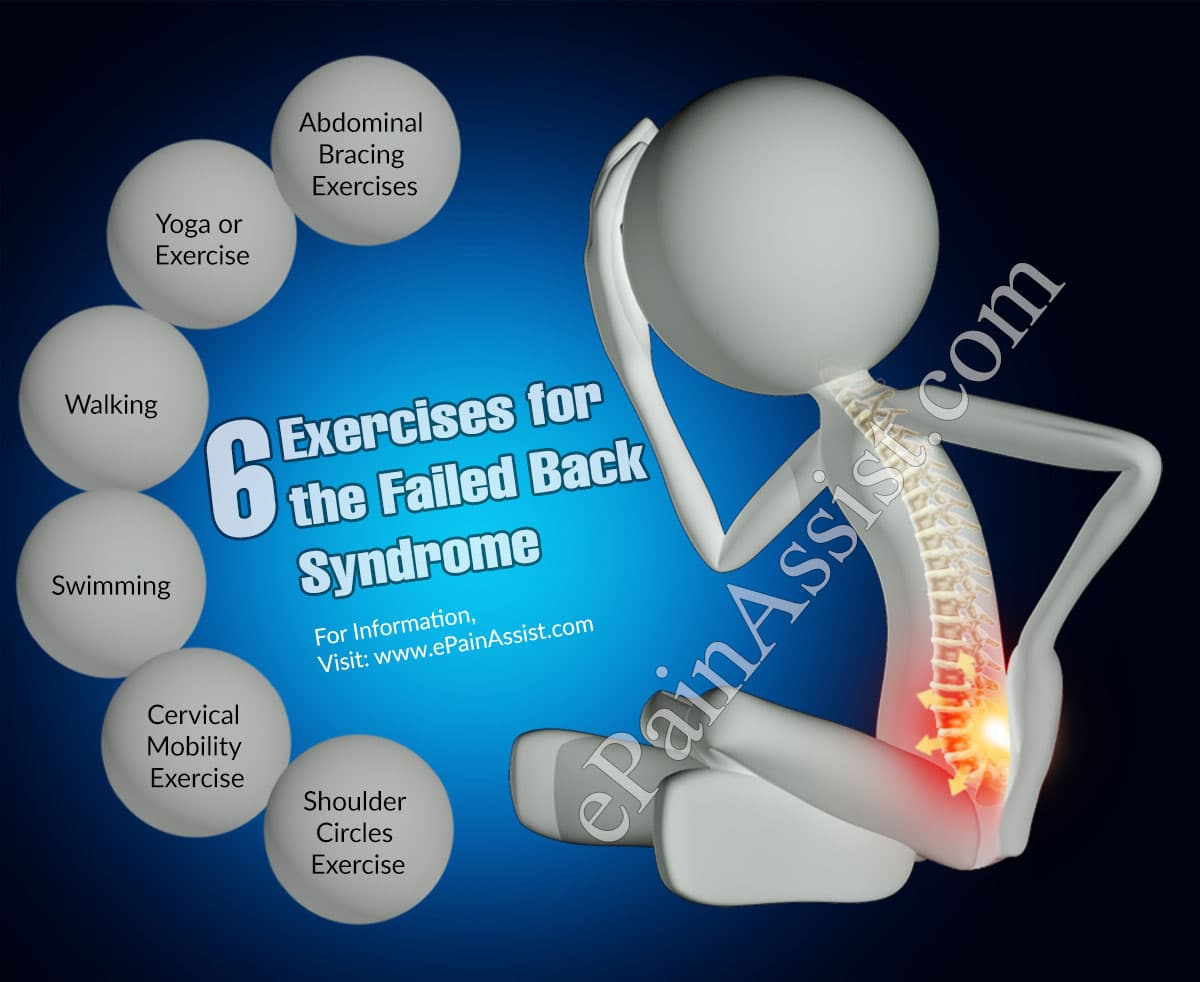 6 Exercises for the Failed Back Syndrome