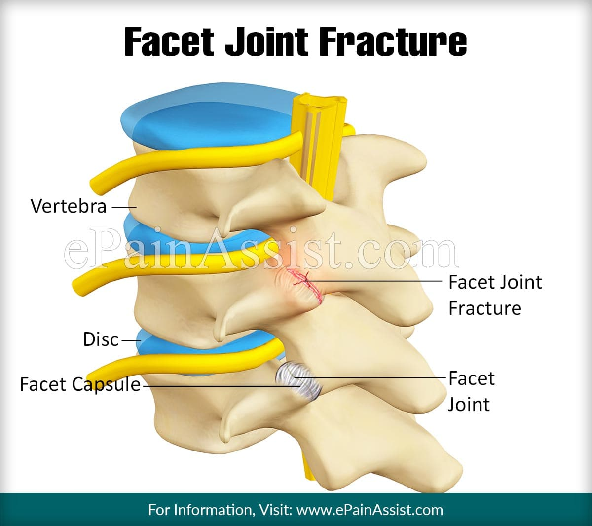 Facet Joint Fracture