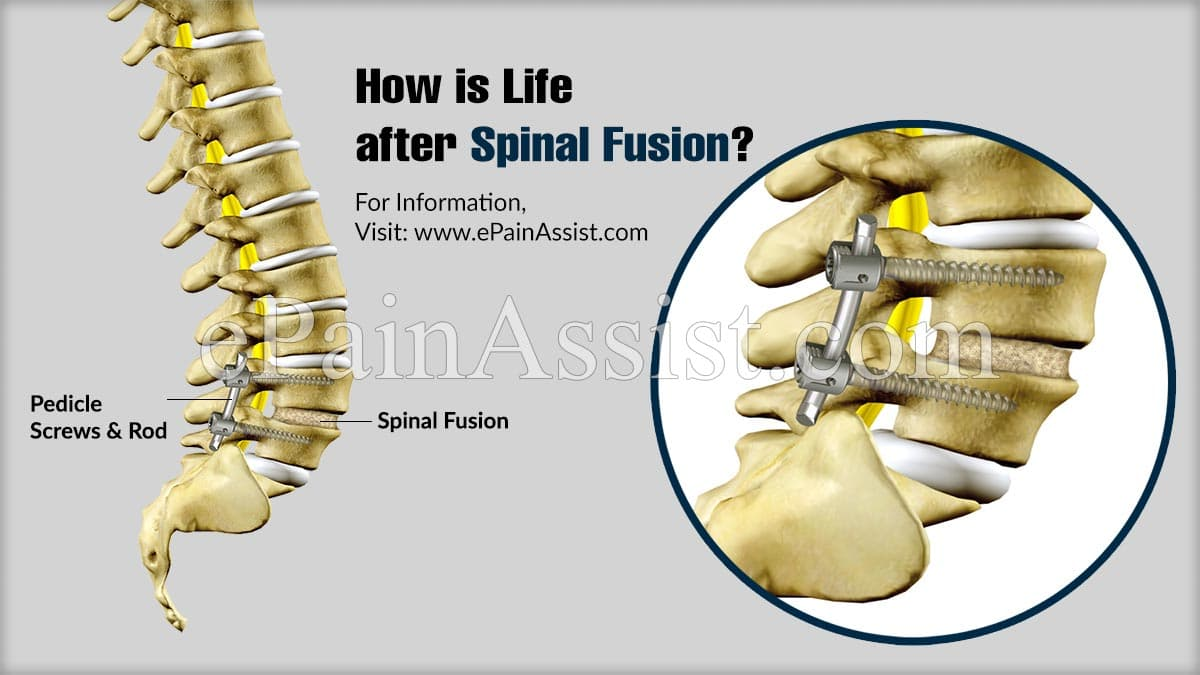 How is Life after Spinal Fusion?