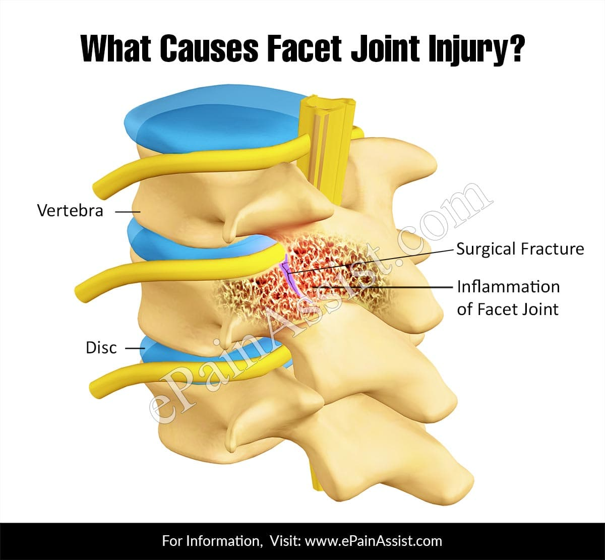 What Causes Facet Joint Injury?