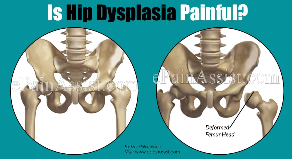 Is Hip Dysplasia Painful?