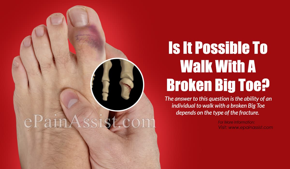 Is It Possible To Walk With A Broken Big Toe?