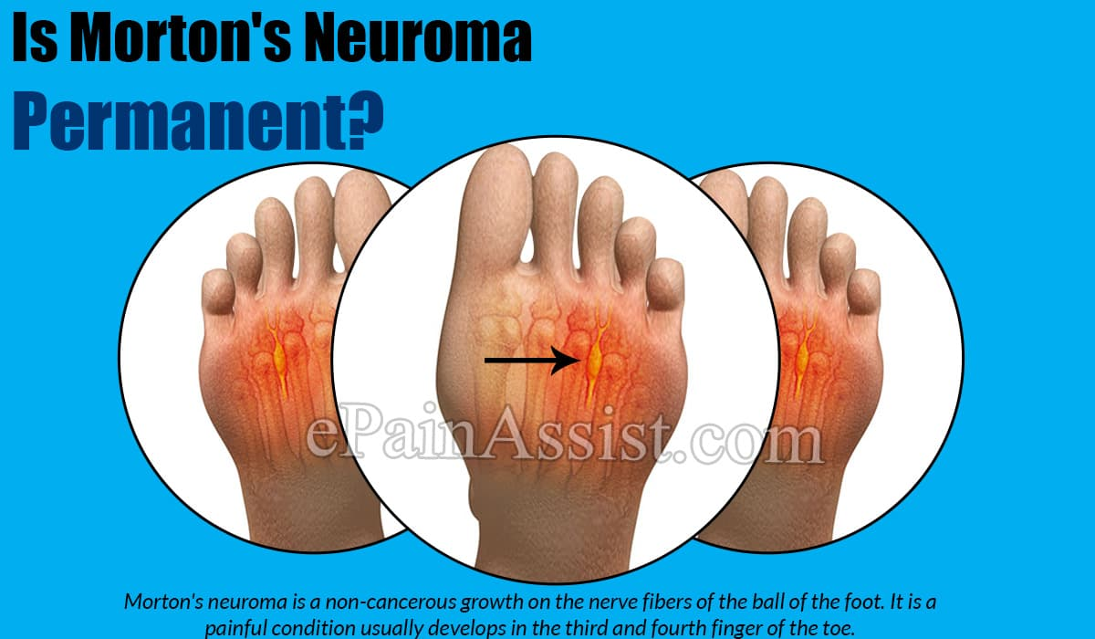 Is Morton's Neuroma Permanent?