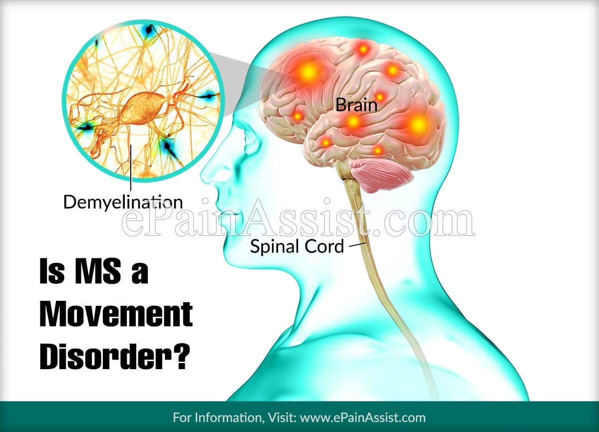 Is MS a Movement Disorder?
