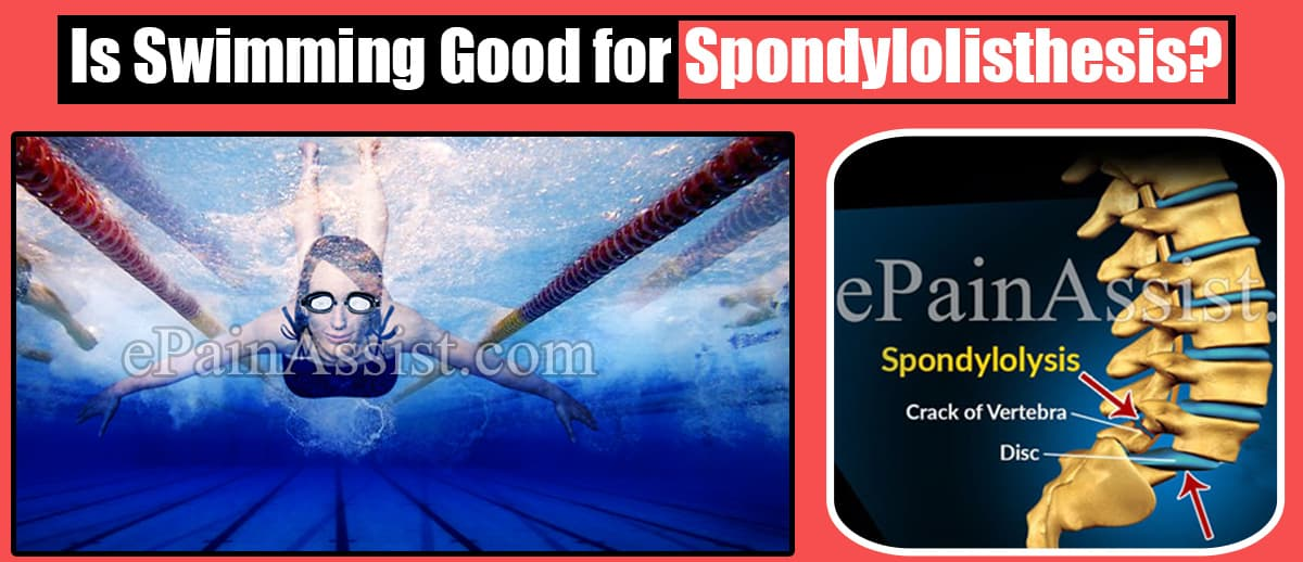 Is Swimming Good for Spondylolisthesis?