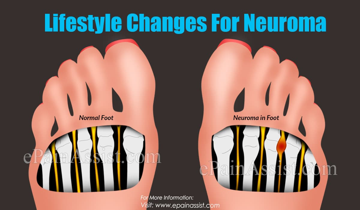 Lifestyle Changes For Neuroma