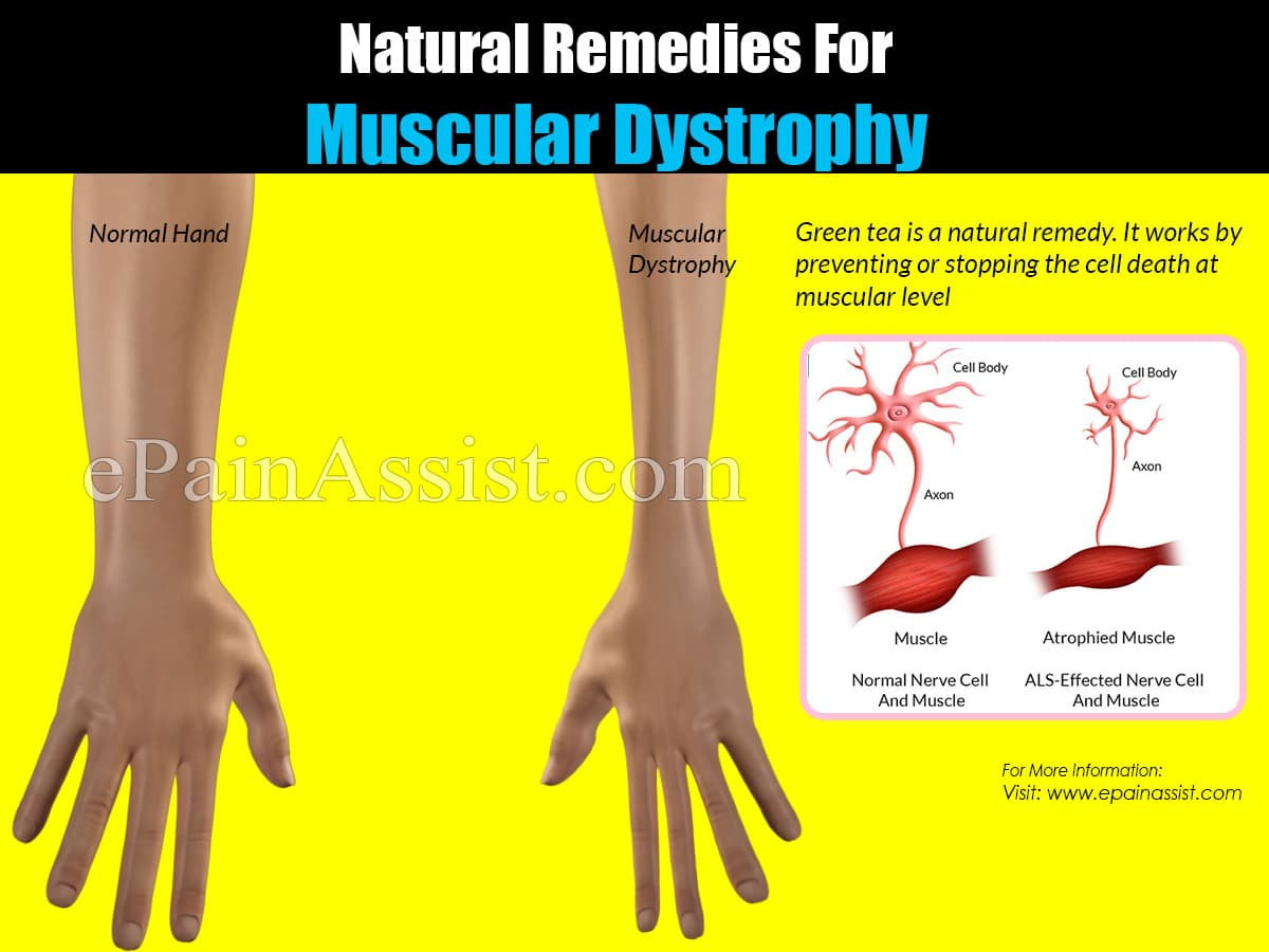 Natural Remedies For Muscular Dystrophy