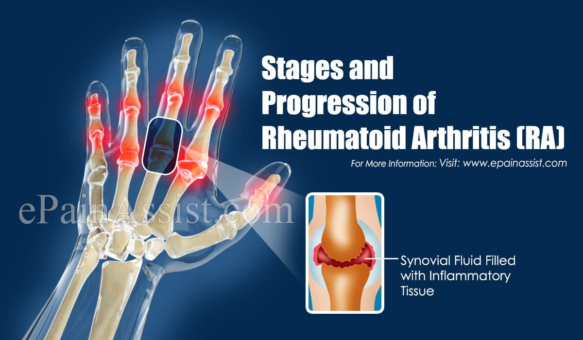 What are the Stages of Rheumatoid Arthritis?